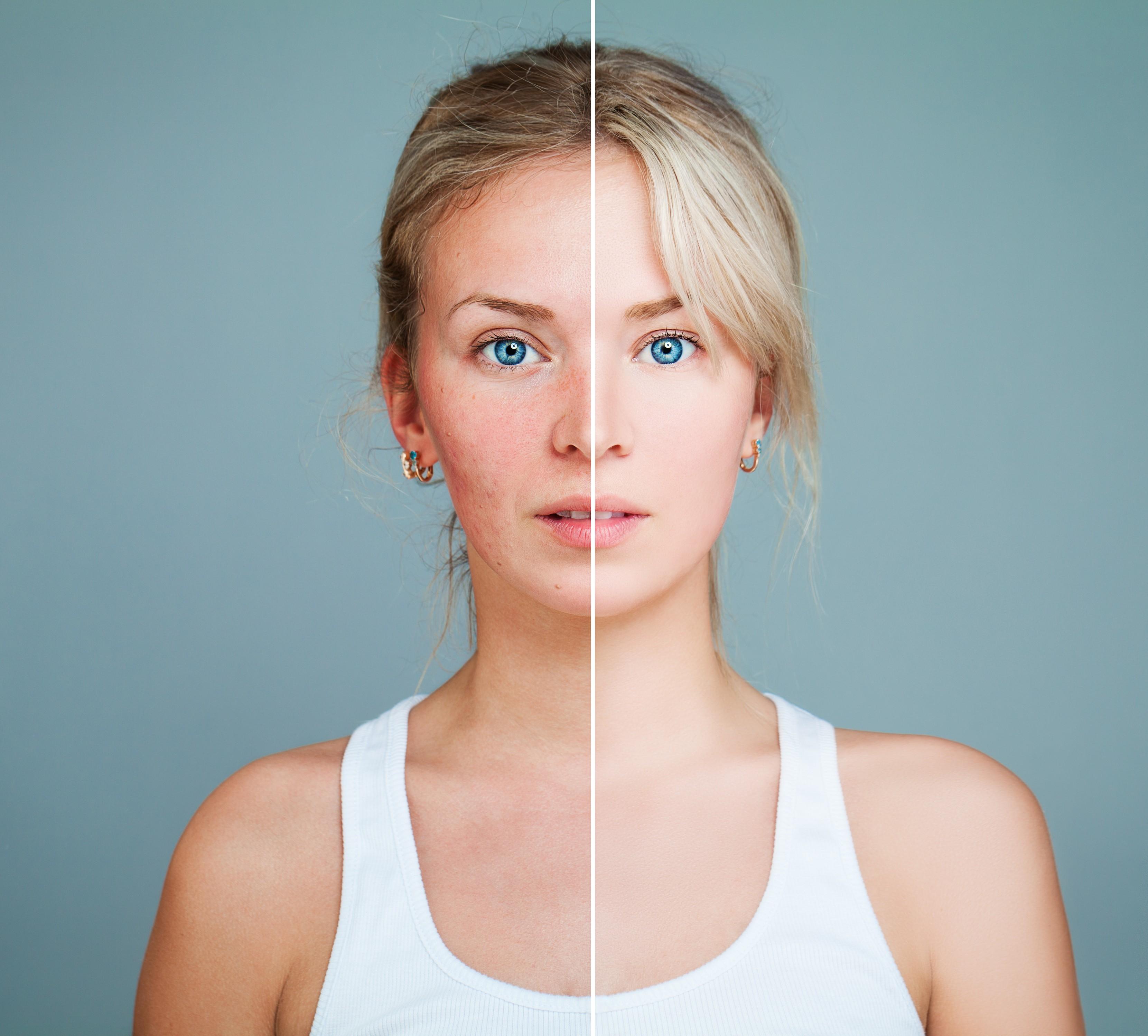 Muito sol e pouca proteção podem deixar a pele do rosto com manchas (Foto: Thinkstock)