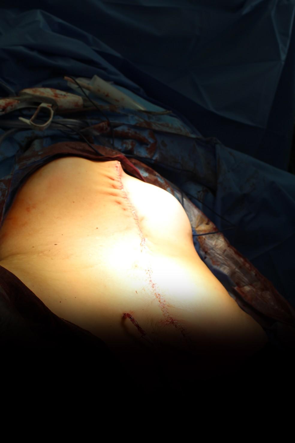 Barriga da paciente após a remoção do tumor ovariano de 60kg nos Estados Unidos (Foto: Danbury Hospital, Danbury, CT, USA)
