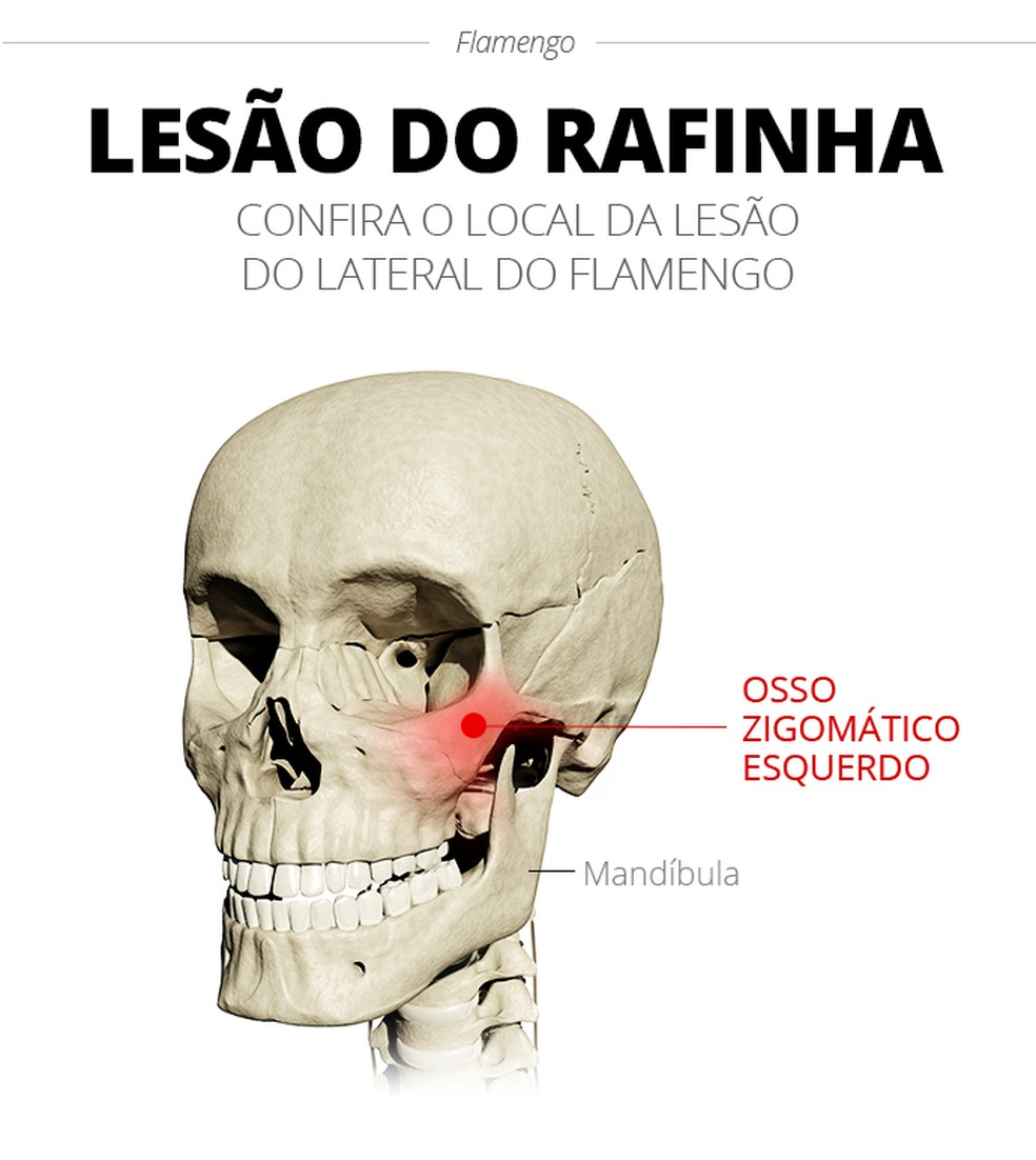 A lesão de Rafinha, lateral-direito do Flamengo — Foto: Infoesporte