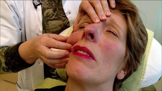 Paralisia facial acomete 80 mil pessoas por ano no Brasil