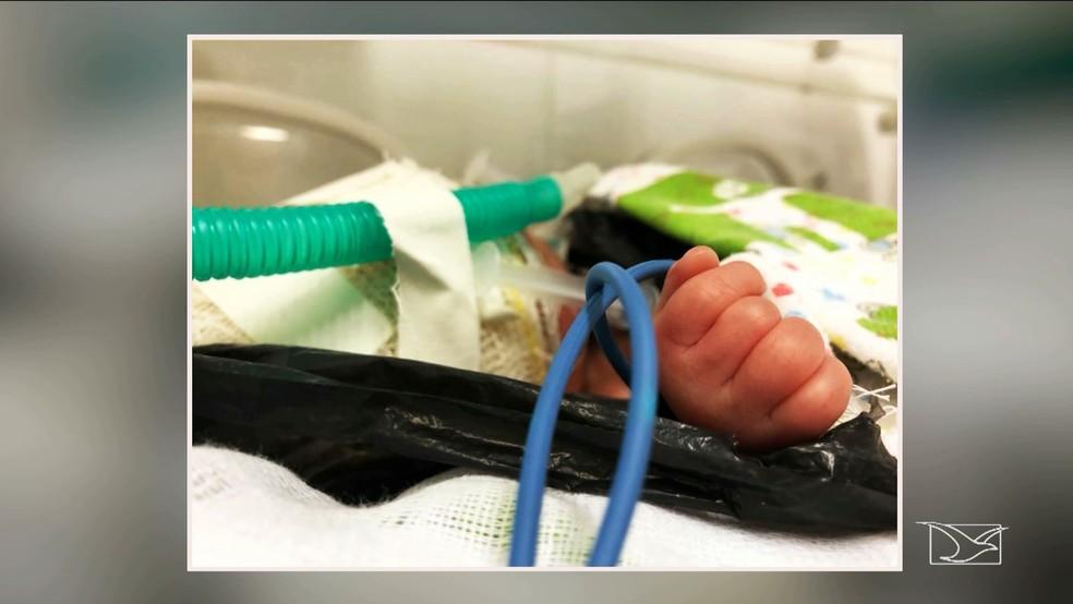 Recém-nascido foi levado para o Hospital Municipal de Vargem Grande e do município ele foi encaminhado para o Hospital da Criança de São Luis (Foto: Reprodução/TV Mirante)