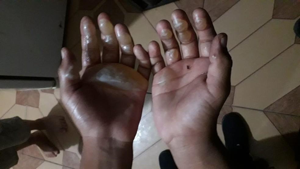 Criança de 9 anos ficou com mãos tomadas por bolhas da queimadura com ferro de passar roupa — Foto: Arquivo Pessoal