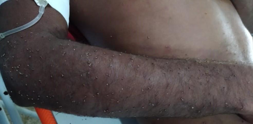 Homem foi atacado por abelhas em Rondônia — Foto: Samu/Reprodução