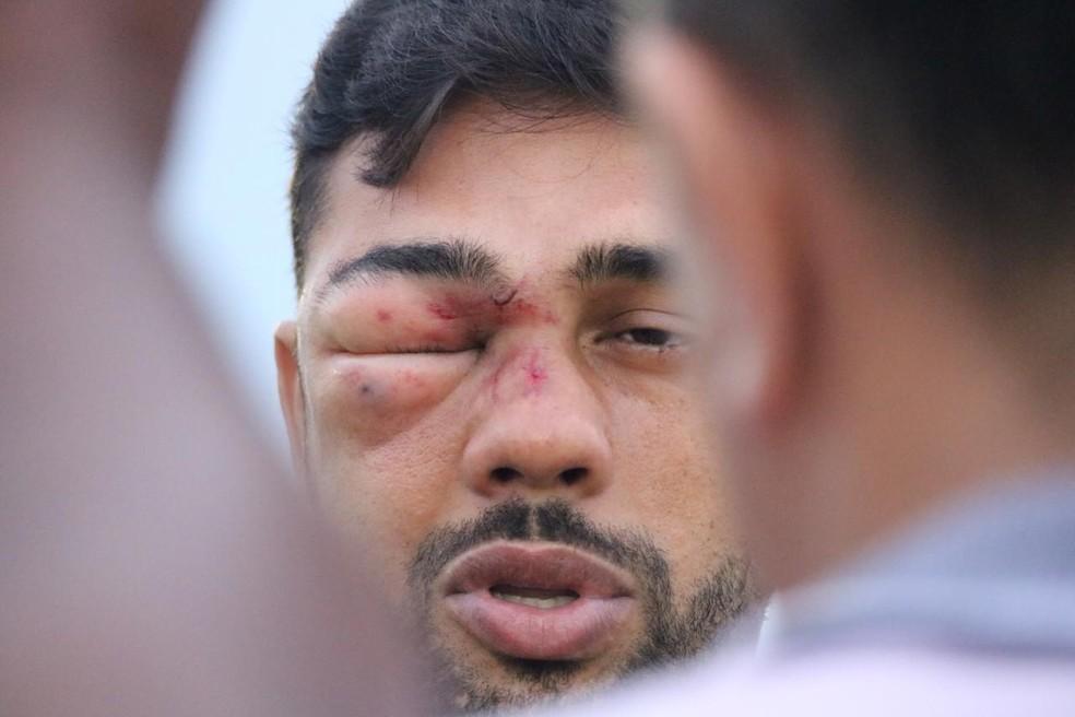 Jogador fez exames de imagem que descartaram lesão — Foto: Stephanie Pacheco