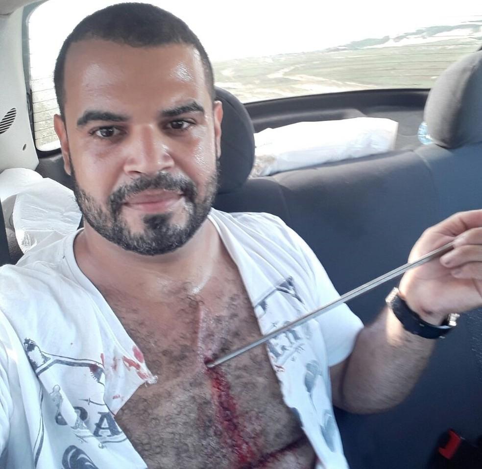com arpão perfurado na pele. Ele recebeu atendimento médico, teve a ponta retirada e já recebeu alta (Foto: Arquivo pessoal)