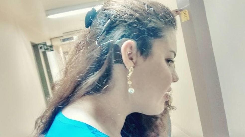 -  Jovem surda tem aparelho auditivo furtado em parada de ônibus em Belém.  Foto: Giowana Nauar / Arquivo Pessoal
