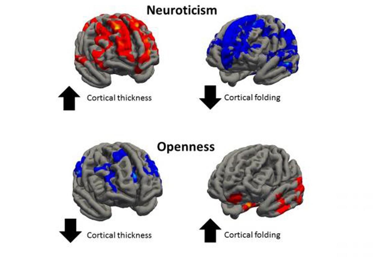Personalidade pode estar relacionada a formato do cérebro, dizem cientistas