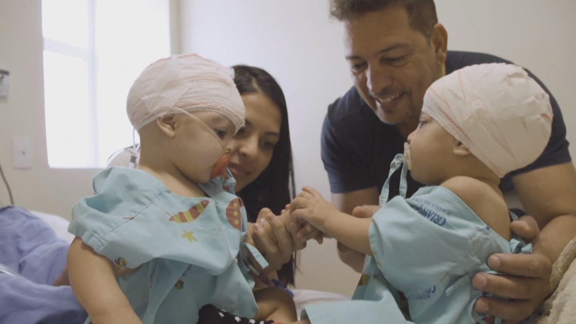 Coronavírus: morre médico norte-americano que orientou cirurgia de separação das irmãs siamesas Lis e Mel