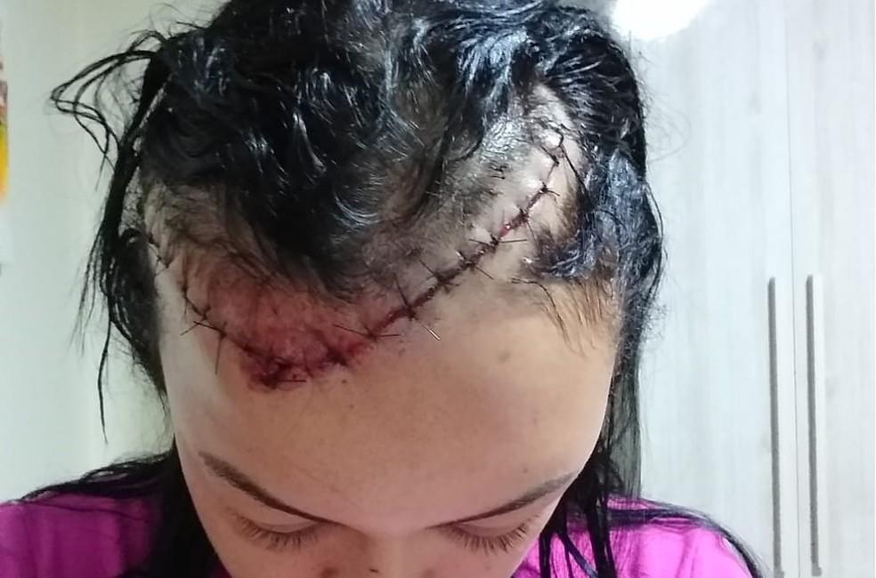 Rafaele Christina Melo de Almeida foi levada para o hospital e levou 40 pontos na cabeça — Foto: Arquivo pessoal
