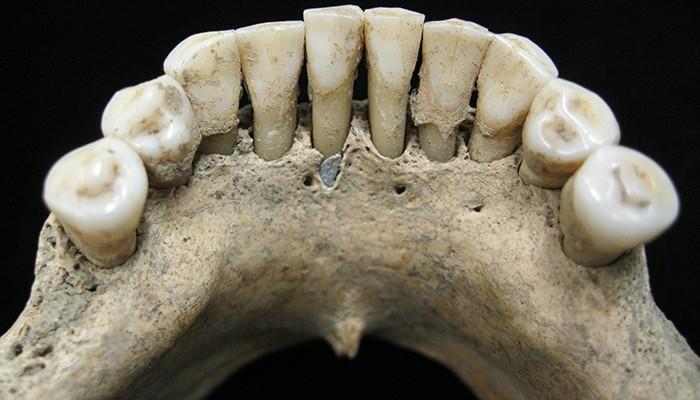 Pesquisadores encontraram um pigmento azul utilizado para escrever no tártaro dentário de uma mulher enterrada (Foto: Divulgação)