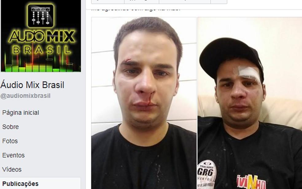 Funcionário acusa MC Livinho de agressão (Foto: Reprodução/TV Globo)