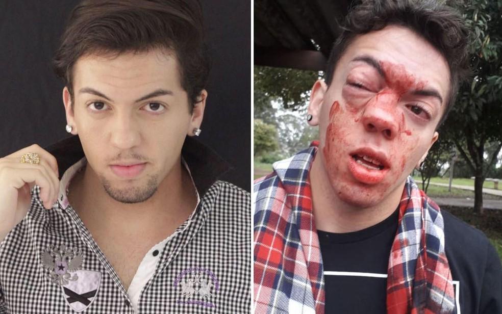 O ator Marcello Santanna foi vítima de agressão na Zona Leste de São Paulo — Foto: Reprodução/Facebook