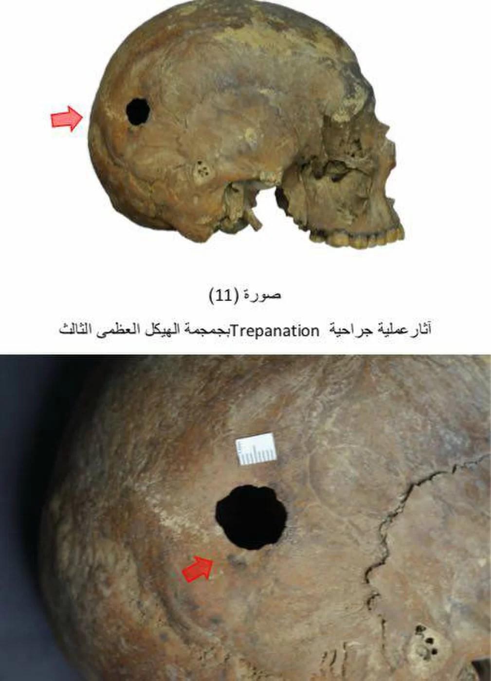 Esqueleto teria passado por trepanação, segundo arqueólogos (Foto: Ministério de Antiguidades do Egito)