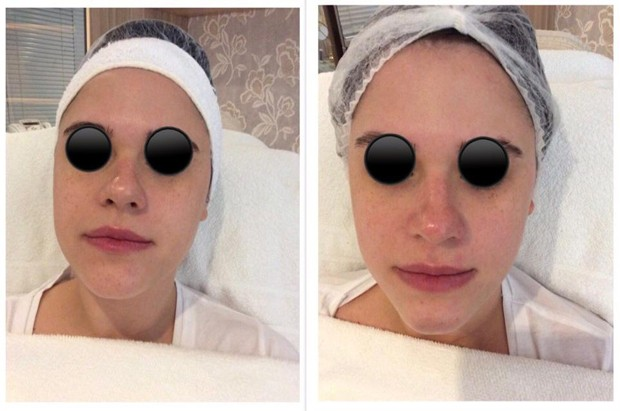 O antes e depois da editora de beleza Helena Moro (Foto: Divulgação)