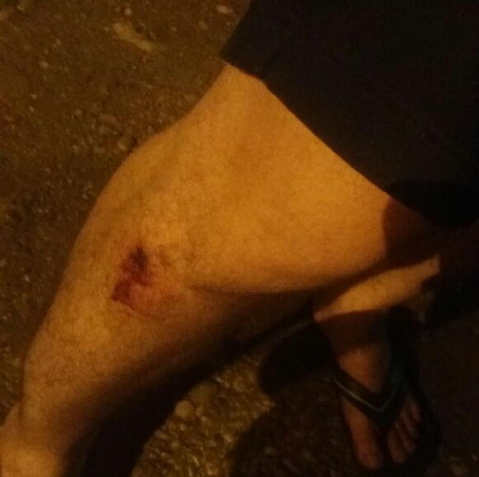 Jovem foi atingido com bala de borracha (Foto: Arquivo Pessoal)
