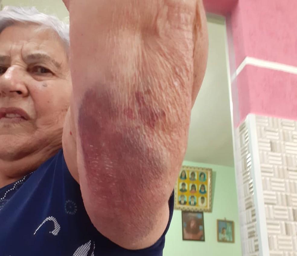 Apesar das lesões, Maria de Jesus não sofreu fraturas e foi liberada pelos médicos — Foto: Arquivo pessoal