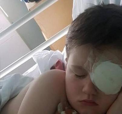 Taylor com curativo no olho (Foto: Divulgação)
