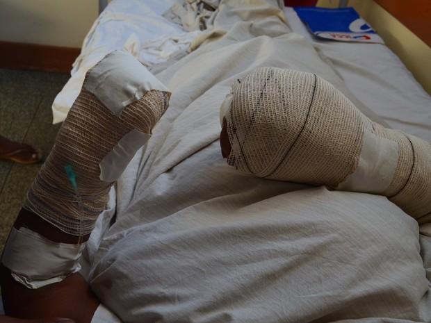 Mulher de 30 anos teve a mão esquerda decepada e a direita multilada (Foto: Aline Paiva/ G1)