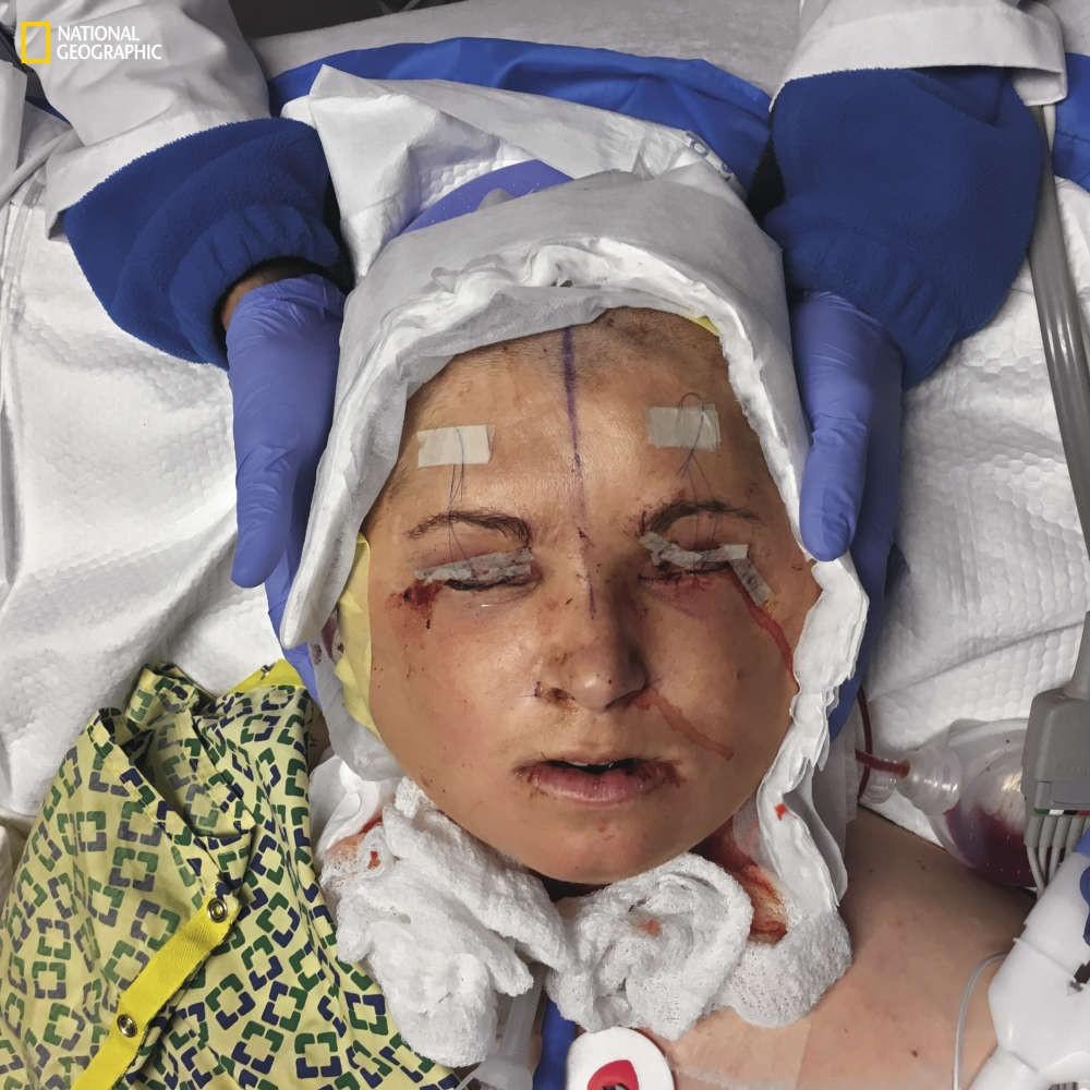 Cirurgia de Katie Stubblefield foi extremamente arriscada, mas deu tudo certo (Foto: Lynn Johnson/National Geographic)