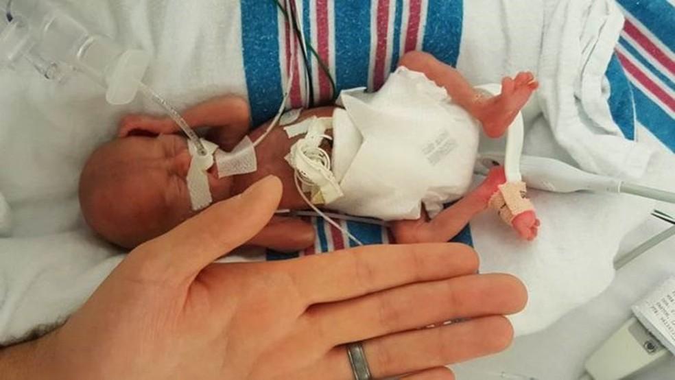 Connor em julho de 2018, poucos dias após nascer, ao lado da mão do pai, John Florio — Foto: JAMIE AND JOHN FLORIO