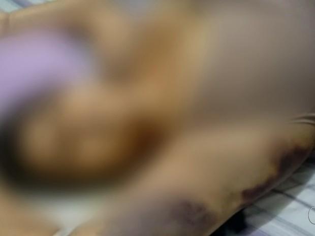 Áudio revela queixa de mulher que morreu após lipo: 'Vomitei 20 vezes' em Goiás (Foto: Reprodução/TV Anhanguera)