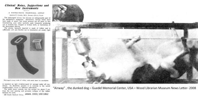 Cânula de Guedel  (Foto: Guedel Memorial Center)