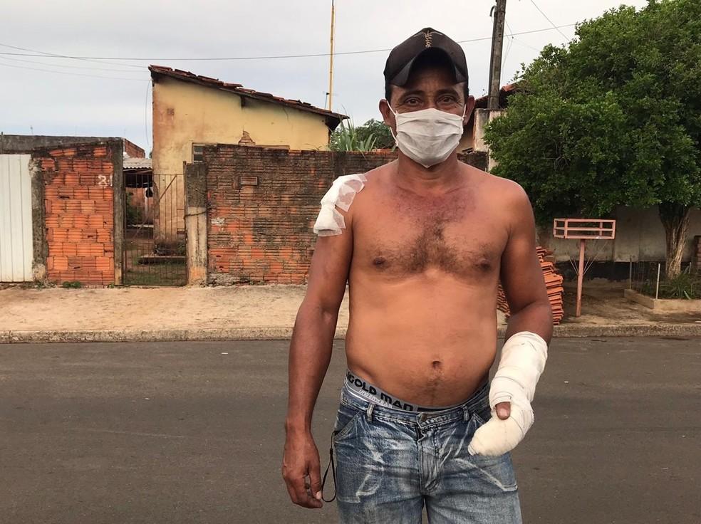 Vizinho sofreu ferimentos ao socorrer bebê durante incêndio em Araçatuba  — Foto: Rafael Ferraz/TV TEM