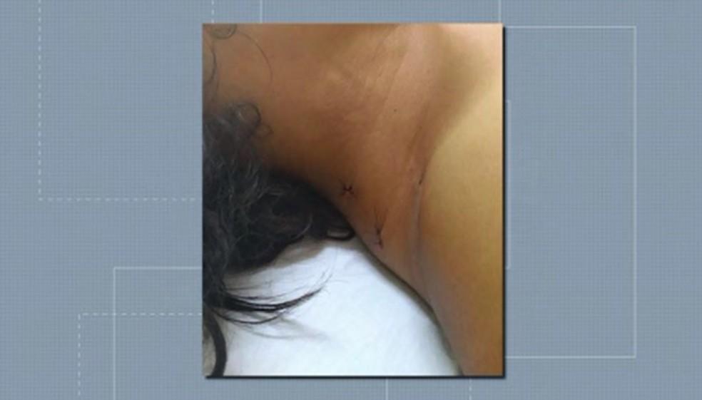 Mulher foi atingida por facadas no pescoço, nos braços, pernas e tórax, em Rolândia — Foto: Reprodução/RPC
