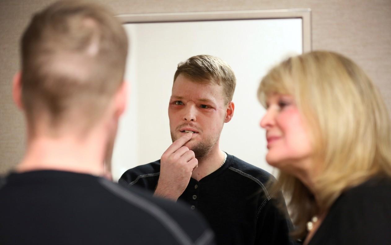 Após o transplante, Andy se vê no espelho pela primeira vez