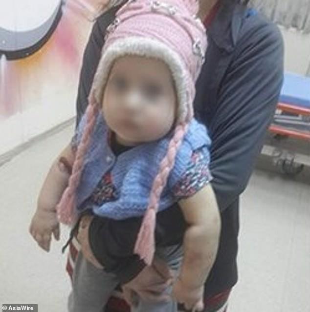 Eylul Miray, criança torturada pela própria mãe (Foto: Asia Wire/Reprodução)