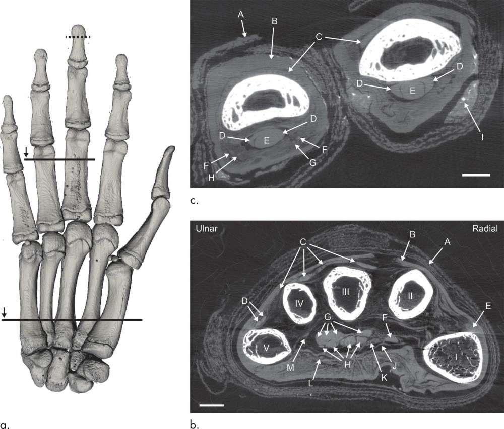 Detalhes das informações obtidas com a tomografia computadorizada da múmia (Foto: Divulgação)