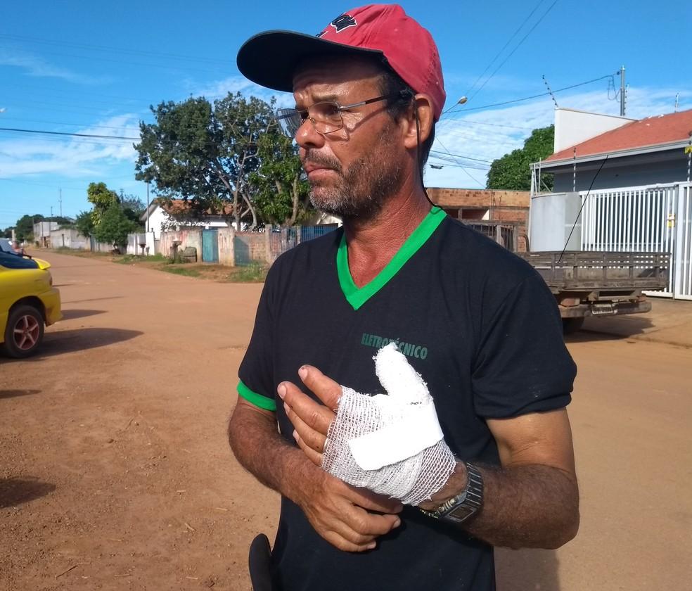 Almando sofreu ferimentos na mão ao tentar socorrer esposa em Vilhena, RO  — Foto: Eliete Marques/G1