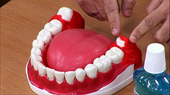 Escovar os dentes com muita força e de forma errada retrai a gengiva e provoca sensibilidade
