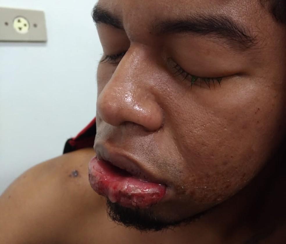 """Pablo Henrique, de 26 anos, sofreu queimaduras nos lábios, língua e garganta após """"engolir"""" soda cáustica — Foto: Arquivo pessoal"""
