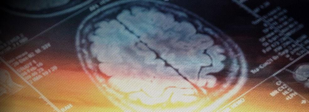 Estudos mostraram que usamos mais de 10% do cérebro mesmo em tarefas mais simples  (Foto: BBC)