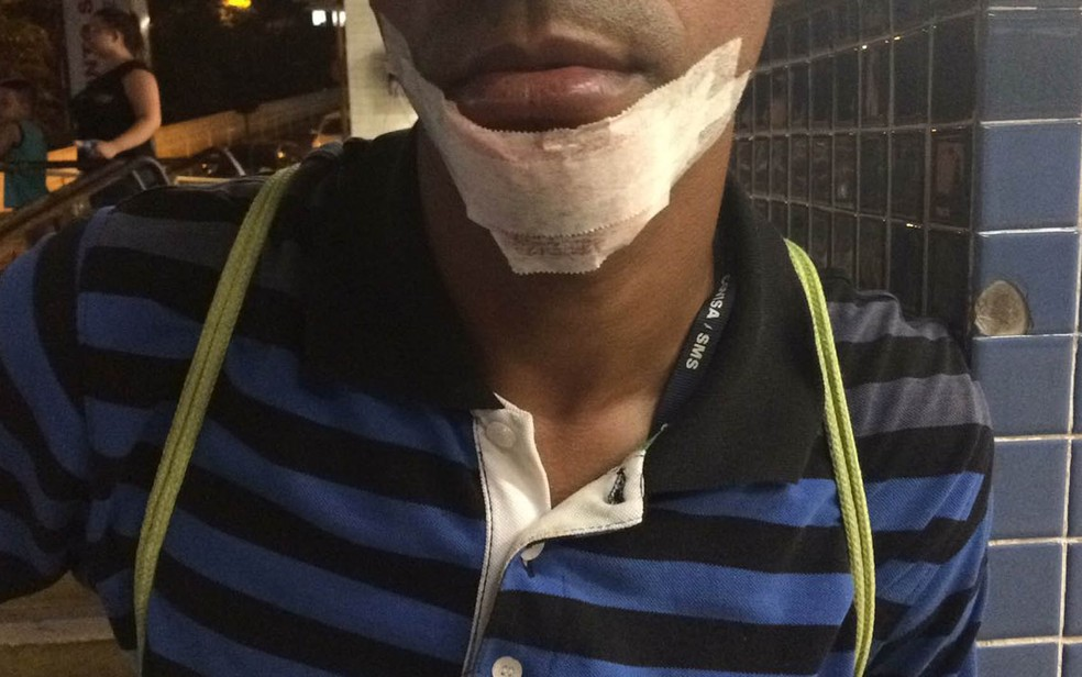 Servidor municipal agredido em ato na Câmara levou cinco pontos no queixo (Foto: Lívia Machado/G1)