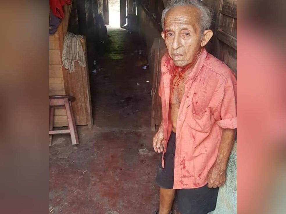 Abner Lopes, de 75 anos, ficou com um corte na cabeça após paulada — Foto: Ronald Rodrigues/Arquivo Pessoal