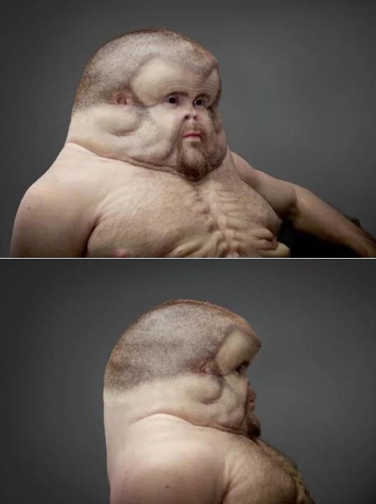 Graham não tem pescoço e sua cabeça, muito maior que a dos humanos normais, funciona como um capacete
