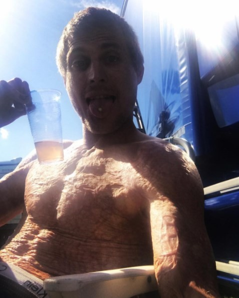 Freddy Beeson e suas marcas de queimaduras