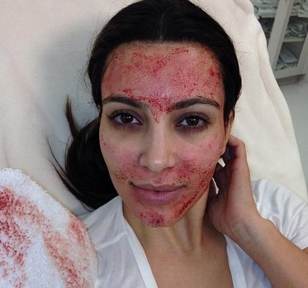 Kim Kardashian durante a técnica do microagulhamento (Foto: Reprodução / Instagram)
