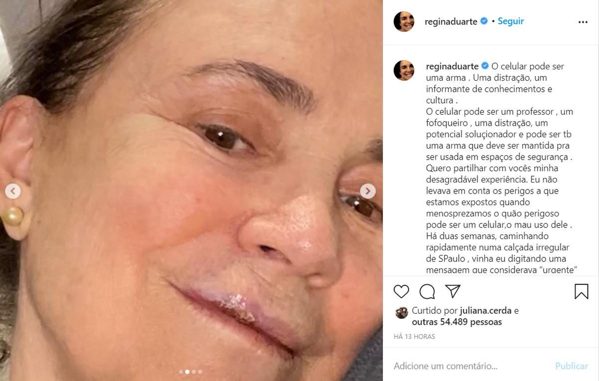 Regina Duarte cai em calçada de SP e quebra 3 dentes: 'Aterrissei de boca no chão'   São Paulo