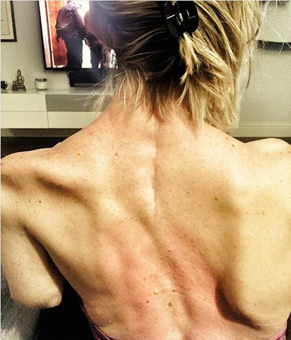 A dublê Olivia Jackson mostrando suas costas com as lesões decorrentes do acidente no set de Resident Evil (Foto: Instagram)