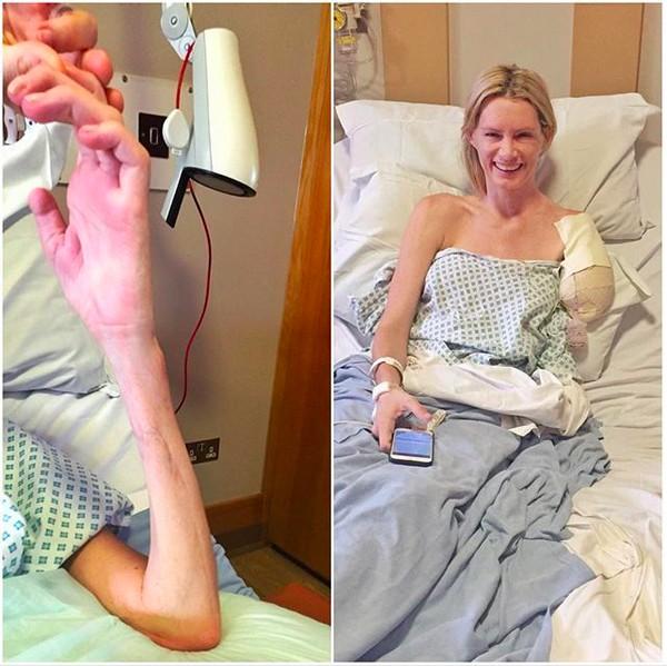 A dublê Olivia Jackson mostrando o braço que ela precisou remover em decorrência das lesões ocorridas no set de Resident Evil (Foto: Instagram)
