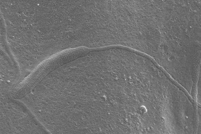 Espermatozoide de 50 milhões de anos foi encontrado na Antártida em um casulo de sanguessuga fossilizado (Foto: Reprodução)