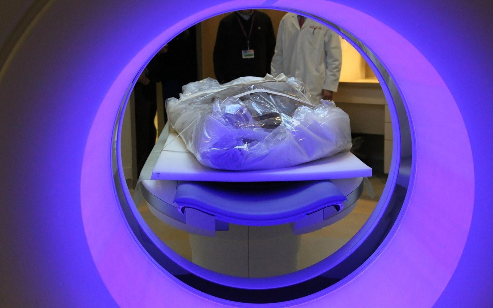 Dieta e estilo de vida podem ter causado problema cardíaco em múmias da Groenlândia (Foto: Brigham and Women's Hospital)