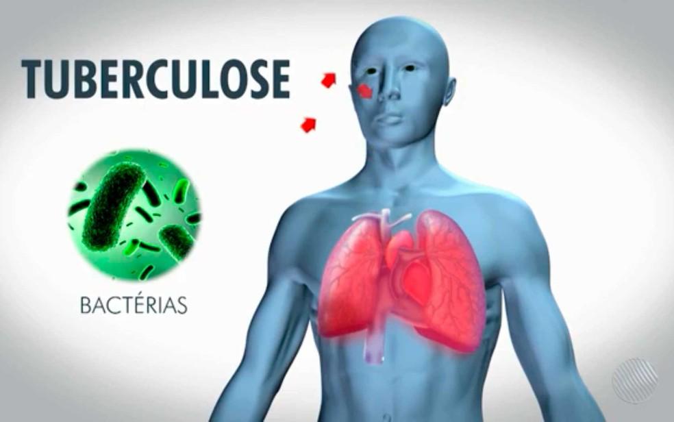 Amapá registra mais de 560 casos de tuberculose em pouco mais de dois anos  | Amapá | G1