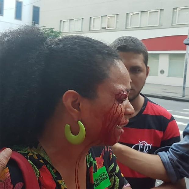 Mayra Alves, irmã de Juliana Alves, é homenageada após agressão (Foto: Reprodução/ Instagram)