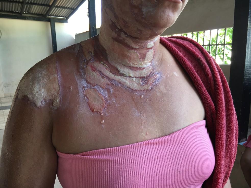 Mulher teve queimaduras de primeiro e segundo grau no pescoço, costas e rosto. (Foto: Emily Costa/G1 RR)
