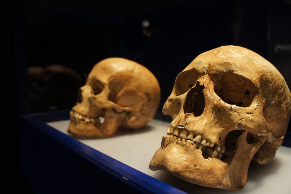 Crânio humano está em constante evolução (Foto: Creative Commons)
