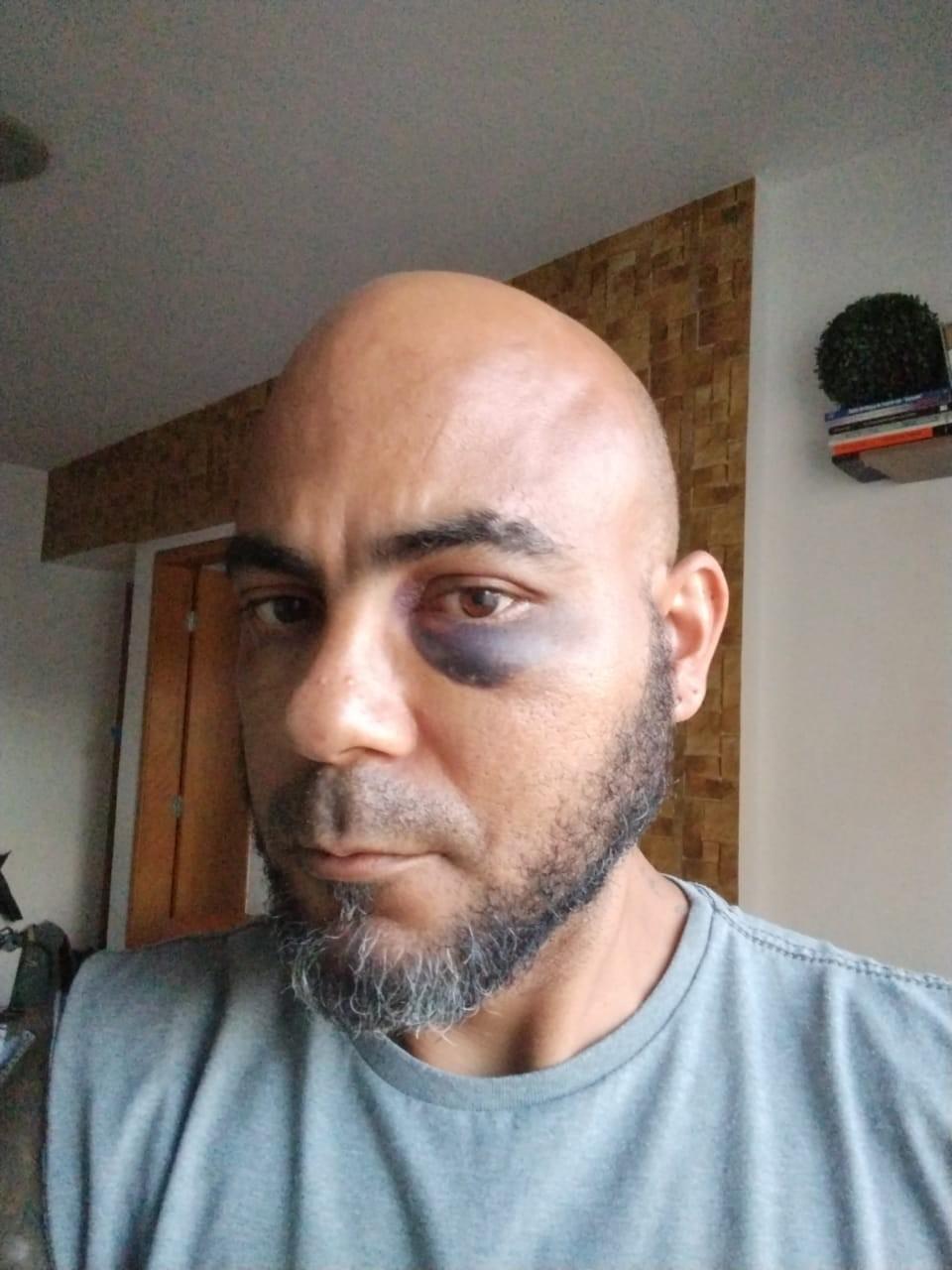 Confusão por uso de máscara no metrô termina com homem agredido no DF